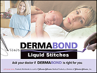 Dermabond Liquid Stitches